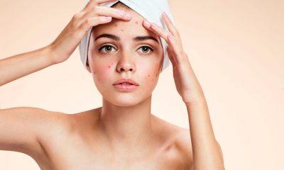 acné en la piel